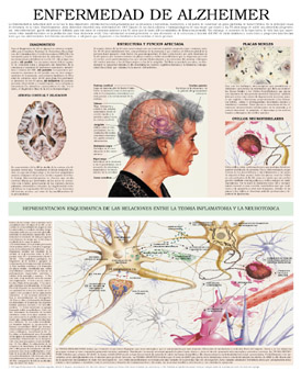 El Alzheimer y el Parkinson